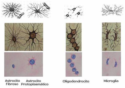 Neuronas-Glia
