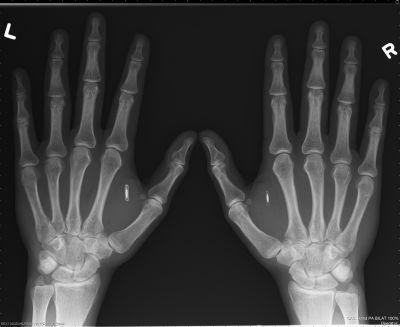 Rfid_implants_pic